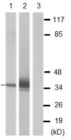 Western blot - Anti-OR4D6 antibody (ab129899)