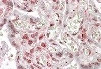 Immunohistochemistry (Formalin/PFA-fixed paraffin-embedded sections) - Anti-MLX antibody (ab130384)