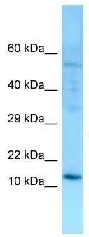 Western blot - Anti-SERP1 antibody (ab130974)