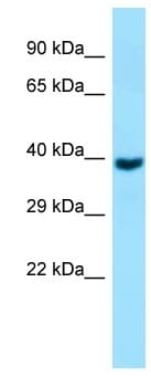 Western blot - Anti-GNA11 antibody (ab130980)