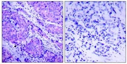 Immunohistochemistry (Formalin/PFA-fixed paraffin-embedded sections) - Anti-PDPK1 (phospho S241) antibody (ab131098)