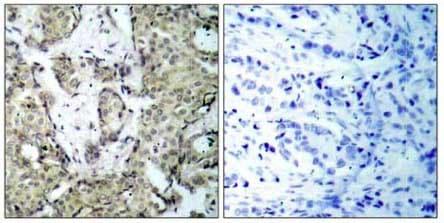 Immunohistochemistry (Formalin/PFA-fixed paraffin-embedded sections) - Anti-MEK3 (phospho S189) antibody (ab131283)