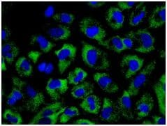 Immunocytochemistry/ Immunofluorescence - Anti-nSMase antibody [EPR6718] (ab131330)