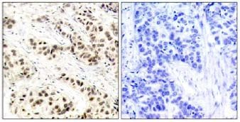 Immunohistochemistry (Formalin/PFA-fixed paraffin-embedded sections) - Anti-CDK1 antibody (ab131450)