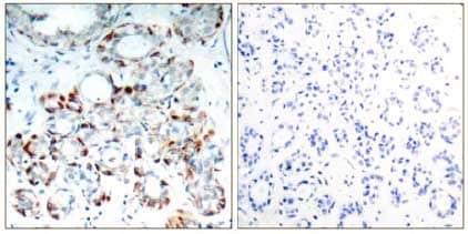Immunohistochemistry (Formalin/PFA-fixed paraffin-embedded sections) - Anti-Bim (phospho S69) antibody (ab131477)