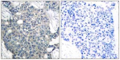 Immunohistochemistry (Formalin/PFA-fixed paraffin-embedded sections) - Anti-Stathmin 1 antibody (ab131481)
