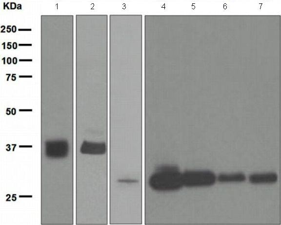 Western blot - Anti-Tropomyosin 1 (alpha) antibody [EPR5159] (ab133292)