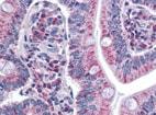 Immunohistochemistry (Formalin/PFA-fixed paraffin-embedded sections) - Anti-SURF4 antibody (ab133369)