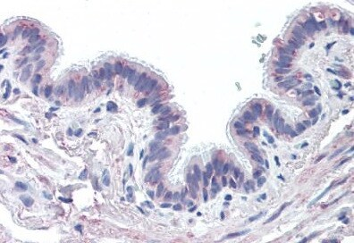 Immunohistochemistry (Formalin/PFA-fixed paraffin-embedded sections) - Anti-MUC13 antibody (ab133396)