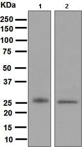 Western blot - Anti-MYL4 antibody [EPR5337] (ab133511)