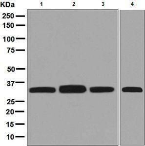 Western blot - Anti-ESD antibody [EPR8447] (ab133631)