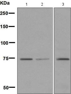 Western blot - Anti-LPP antibody [EPR6479(2)] (ab133651)