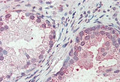 Immunohistochemistry (Formalin/PFA-fixed paraffin-embedded sections) - Anti-SLC44A2 antibody (ab133722)