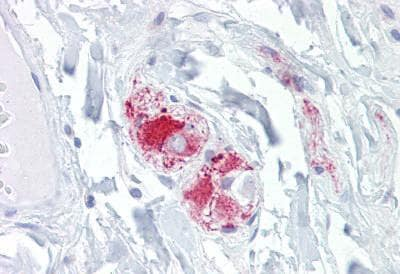 Immunohistochemistry (Formalin/PFA-fixed paraffin-embedded sections) - Anti-Dispatched antibody (ab133796)