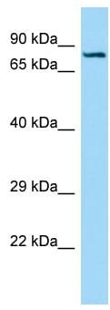 Western blot - Anti-Semaphorin 7a antibody (ab133803)
