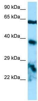 Western blot - Anti-Epiphycan antibody (ab133832)