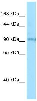Western blot - Anti-BBS9 antibody (ab133841)