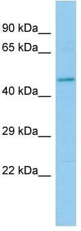 Western blot - Anti-HEPACAM2 antibody (ab133873)