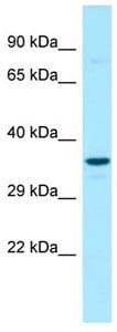 Western blot - Anti-G6PC3 antibody (ab133964)