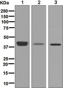 Western blot - Anti-Pleckstrin antibody [EPR6642] (ab134098)
