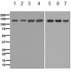 Western blot - Anti-ABL2 antibody [EPR1222(2)] (ab134134)