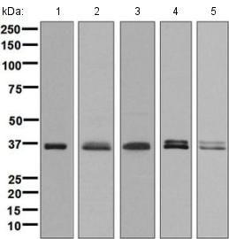 Western blot - Anti-PHOX2A antibody [EPR9070] (ab134939)