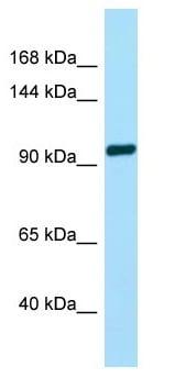 Western blot - Anti-GPCR TAS1R2 antibody - C-terminal (ab135316)