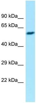 Western blot - Anti-eIF2B3 antibody (ab135351)