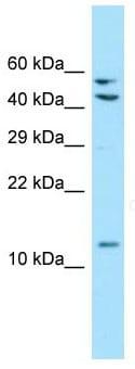 Western blot - Anti-MRPL41 antibody - C-terminal (ab135424)