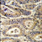 Immunohistochemistry (Formalin/PFA-fixed paraffin-embedded sections) - Anti-IGFBP6 antibody - C-terminal (ab135606)