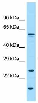 Western blot - Anti-Glypican 6 antibody - N-terminal (ab136295)