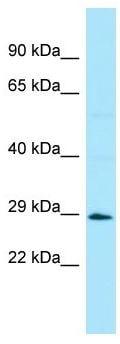 Western blot - Anti-BRDG 1 antibody (ab136328)