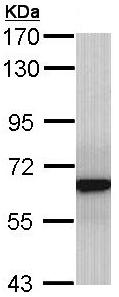 Western blot - Anti-GRB 14 antibody (ab137365)