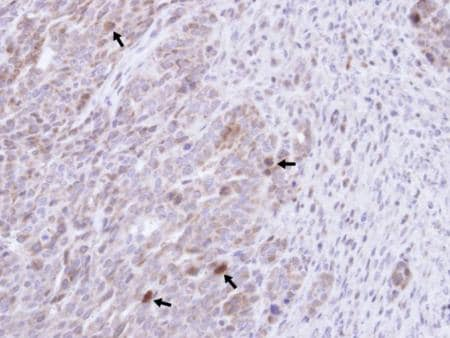 Immunohistochemistry (Formalin/PFA-fixed paraffin-embedded sections) - Anti-GRB 14 antibody (ab137365)