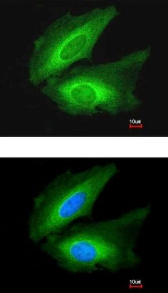 Immunocytochemistry/ Immunofluorescence - Anti-Transglutaminase 2 antibody (ab137378)