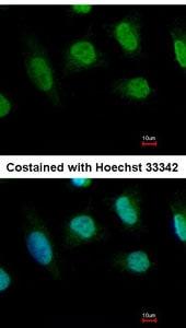Immunocytochemistry/ Immunofluorescence - Anti-Chk1 antibody (ab137400)