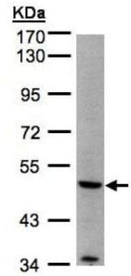 Western blot - Anti-MMP12 antibody (ab137444)