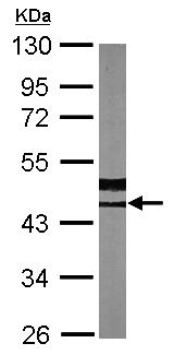 Western blot - Anti-Arp2 antibody (ab137587)