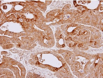 Immunohistochemistry (Formalin/PFA-fixed paraffin-embedded sections) - Anti-HSPA4 antibody (ab137631)