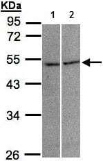 Western blot - Anti-Glycine Receptor alpha 3 antibody (ab137642)