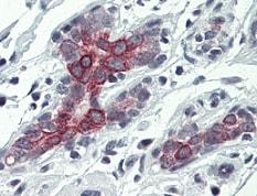 Immunohistochemistry (Formalin/PFA-fixed paraffin-embedded sections) - Anti-Bak antibody - N-terminal (ab137646)