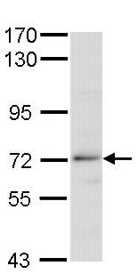 Western blot - Anti-Beta TRCP antibody (ab137674)