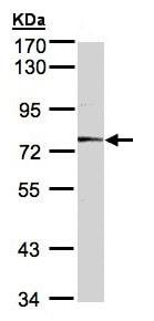 Western blot - Anti-Meprin alpha antibody (ab137686)