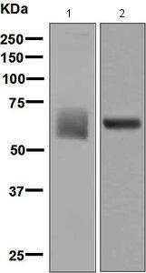 Western blot - Anti-Albumin antibody [EPSISR1] (ab137885)