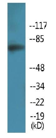 Western blot - Anti-Artemis (phospho S516) antibody (ab138411)