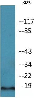 Western blot - Anti-PEA15 (phospho S104) antibody (ab138647)