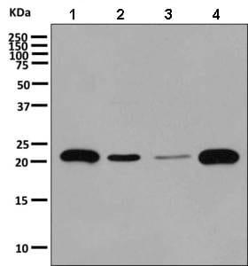 Western blot - Anti-CRCP antibody [EPR9670(B)] (ab139264)