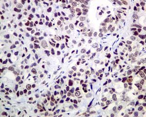 Immunohistochemistry (Formalin/PFA-fixed paraffin-embedded sections) - Anti-CRCP antibody [EPR9670(B)] (ab139264)