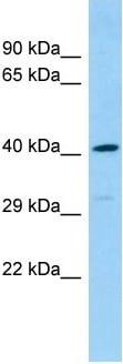 Western blot - Anti-DEF8 antibody - N-terminal (ab139571)