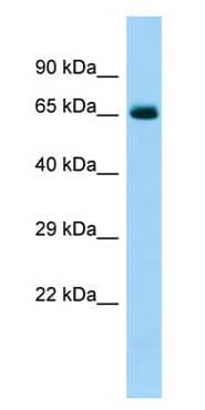 Western blot - Anti-COL6A5 antibody - C-terminal (ab139651)